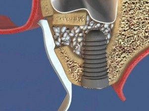 наращиваине костной ткани