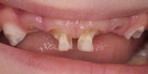 испорченые молочные зубы