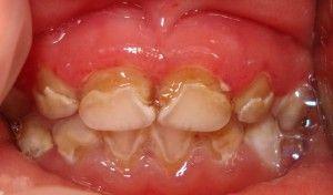 плохие зубы