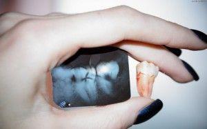 зуб и снимок