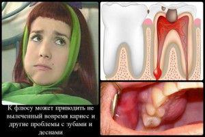 Можно ли удалять зуб при флюсе?