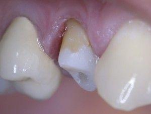 зуб с флюсом