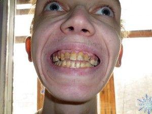 глилые зубы у подростка