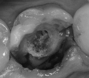 разрушение зуба под коронкой