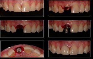 После удаления зуба когда можно ставить имплант?
