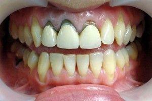 протезы на передних зубах