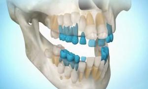 Регенерация новых зубов