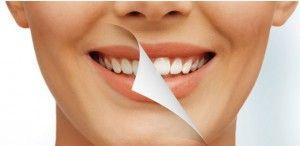 Лазерное выравнивание зубов