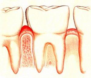Заболевание слизистой оболочки полости рта: поражение и болезни