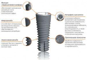макродизайн импланта