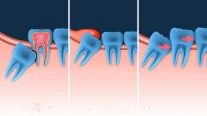 причины удалениния зуба мудрости