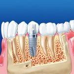имплант в нижней челюсти