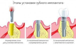 этапы установки имплантов