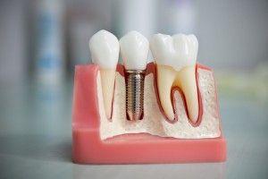 макет имплантации зубов