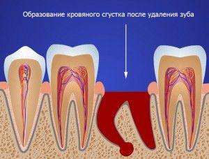 Удаление корней зубов без боли верхней и нижней челюсти