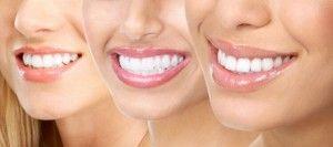 белоснежные улыбки