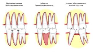 деформация прикуса после удаления зуба
