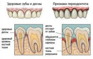 характеристки периодонтита