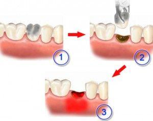 Вирвали зуб: как ухаживать за полостью рта, за лункой после удаления?
