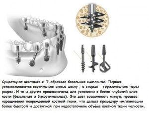 Bazal'naja implantacija