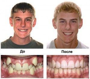 брекеты до и после