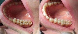запломбированные зубы