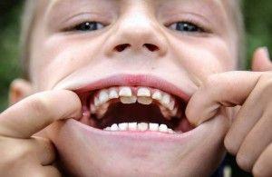 у мальчика двойной ряд зубов