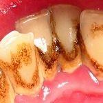 отложения зубного камня