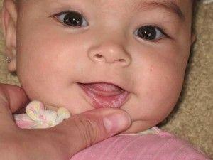 Афтозный стоматит у ребенка
