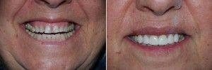 импланты до и после