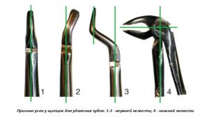 Щипци для удаления зубов стоматологические