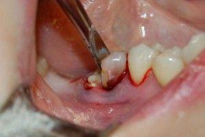 сложное удаление зуба
