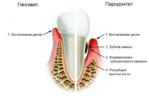 Что такое гингивит: симптомы острой и хронической формы, профилактика