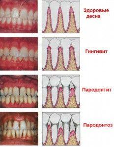 Болят нижние передние зуби: почему ноют и что делать