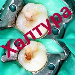 повторное лечение зуба