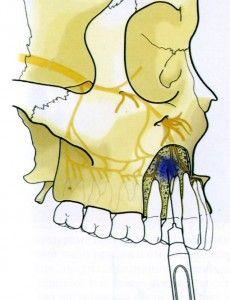 укол в челюсть