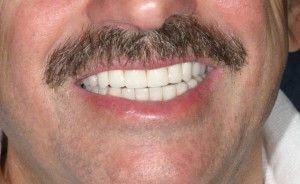 зубы мужчины