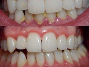 Болит десна в конце нижней и верхней челюсти