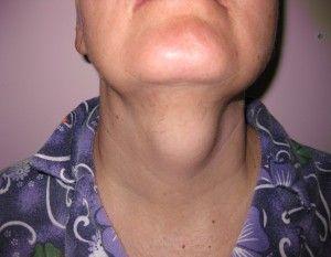 опухоль челюсти