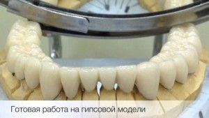 замена зубов на коронки