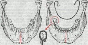 фиксация при переломе челюсти