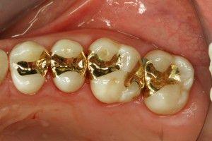 вкладки в стоматологии