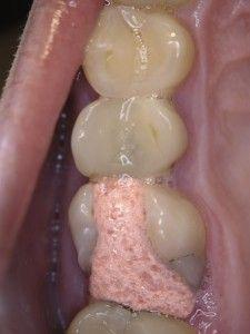 пломба на зубе