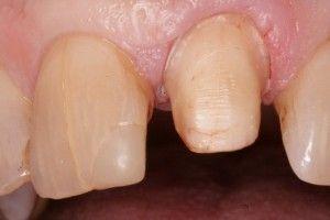трещнина в зубе