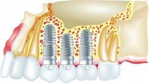 импланты в челюсти