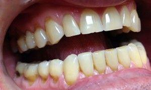 Клиновидный дефект зубов