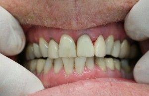 Болезни полости рта в пожилом возрасте