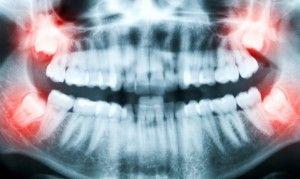 снимок зубов мудрости