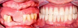 вставные зубы до и после