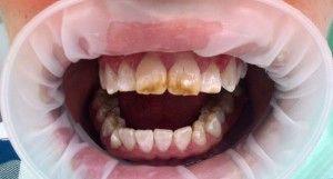 Белие пятна на зубах у ребенка и взрослих: почему появляются?